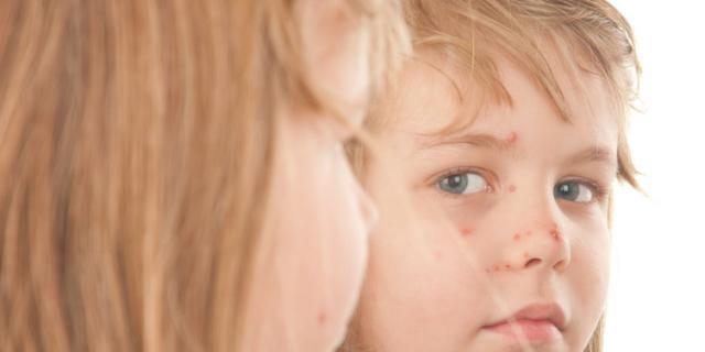Il bambino ha preso il mollusco contagioso: che cosa fare ora?