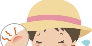 Occhio alle punture d'insetti nei bambini: possono dare allergie