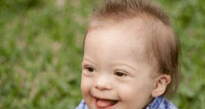 Sindrome di Down: trovata la cura?