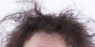 Stress: adolescenti più colpiti degli adulti