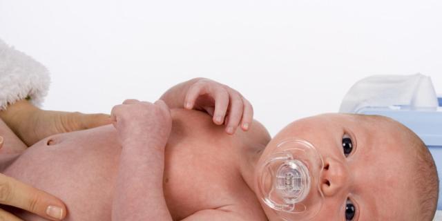 Ernia ombelicale nel neonato