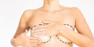 Chirurgia plastica: i miti da sfatare