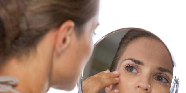 Macchie sul viso durante la gravidanza