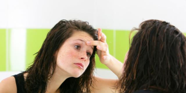 Cambiamento nella pelle dovuto agli ormoni