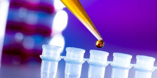 Esami allergici: il rast test