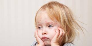Morbillo: una malattia più pericolosa di quanto si creda