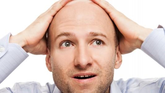 Infertilità maschile: un legame con la caduta dei capelli?