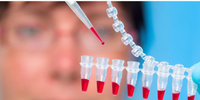 Test sul Dna fetale può individuare la sindrome di DeGeorge?