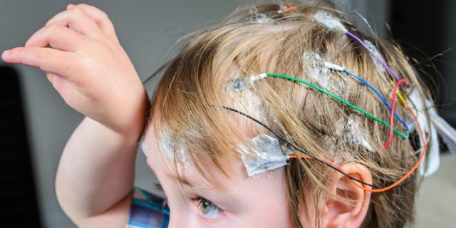 Epilessia: colpiti soprattutto i bambini