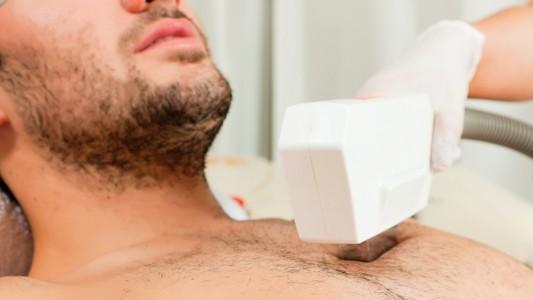 Depilazione laser anche per gli uomini