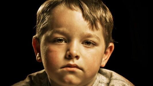 Obesità infantile: attenzione al rischio depressione