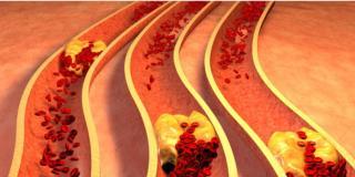 Colesterolo: due italiani su 3 non lo controllano
