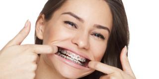 Apparecchio ai denti: è boom tra gli over 40
