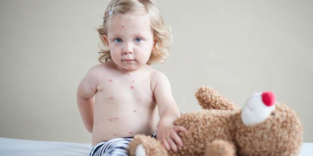 Varicella e herpes zoster possono provocare l'ictus