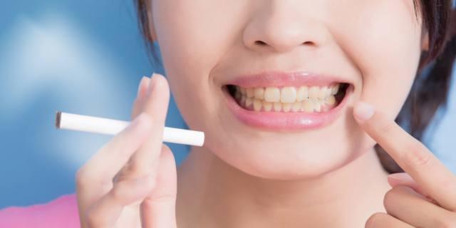 Parodontite: i danni del fumo sulle gengive
