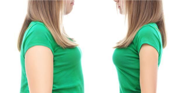 Adolescenti obesi: microbiota alterato