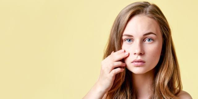 La vitamina A combatte l'acne
