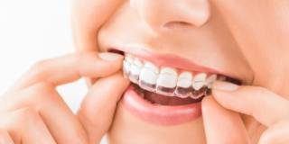 Apparecchio ai denti anche per gli adulti, sì ma solo se…