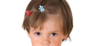 Morbillo: 4,5 milioni di bambini in Europa non sono vaccinati