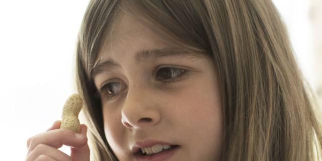 Allergia alle arachidi, l'immunoterapia aumenta le reazioni