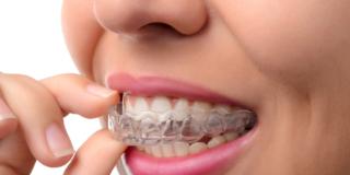 Apparecchi ai denti: no al fai da te!