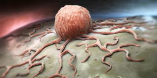 Lotta contro i tumori: scoperto come la malattia riesce a progredire