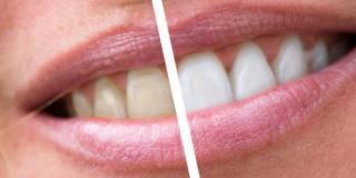 Sbiancare i denti? Ecco le migliori soluzioni