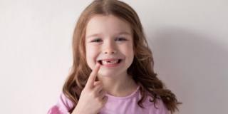 Agenesia dentale, un problema non solo estetico