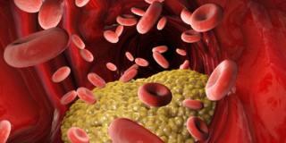 Colesterolo buono alto non è detto che faccia bene